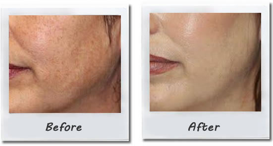 Detox-Therapy-Spa-Tucson-Signature-Facial-microdermabrasion1