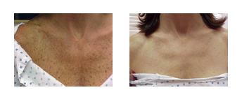 Detox-Therapy-Spa-Tucson-Signature-Facial-whitening2