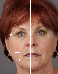 Detox-Therapy-Spa-Tucson-skin-care-galvanic-treatment-2