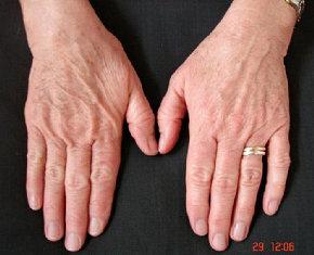 Detox-Therapy-Spa-Tucson-skin-care-galvanic-treatment-3