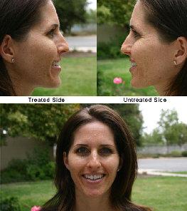 Detox-Therapy-Spa-Tucson-skin-care-galvanic-treatment-4
