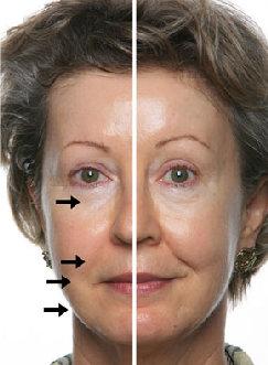 Detox-Therapy-Spa-Tucson-skin-care-galvanic-treatment