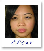 Detox Therapy Spa Tucson Signature Facial Blemish Control Acne_after