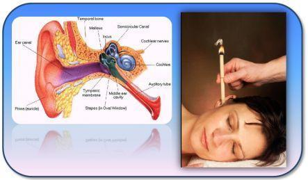 detox therapy spa ear candling2